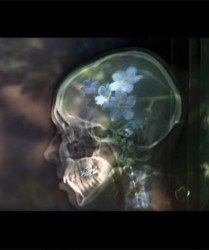 Photography on glass, oac base : x-ray photograph in front of forget-me-not flowers • 9x16cm • GALLERY PHOTOGRAPHY