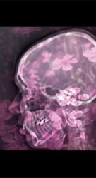Photography on glass, oac base : x-ray photograph in front of flowers • 9x16cm • GALLERY PHOTOGRAPHY