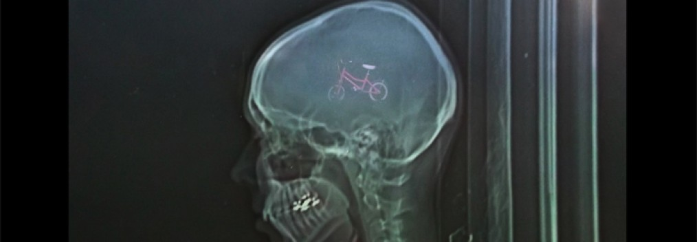 Photography on glass, oac base : x-ray photograph in front of a little bike • 9x16cm • GALLERY PHOTOGRAPHY